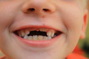 Wypadające zęby